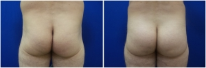 buttock-implants-12-1