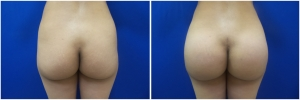 buttock-implants-14-1