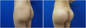 buttock-implants-14-3