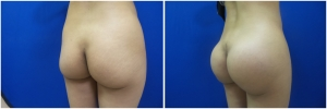 buttock-implants-14-5