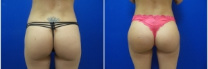 buttock-implants-5-1
