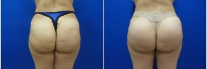 buttock-implants-7-2