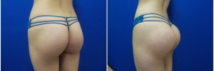 buttock-implants-8-4