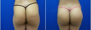 buttock-implants-9-1