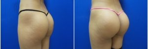 buttock-implants-9-4