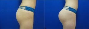buttock-implants-before-after-16-1