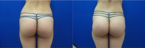 buttock-implants-before-after-16-2