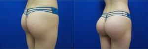 buttock-implants-before-after-16-3