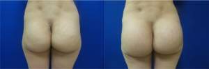 buttock-implants-before-after-17-1