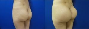 buttock-implants-before-after-17-2