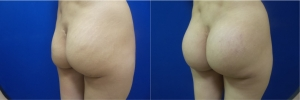 buttock-implants-before-after-17-4