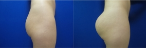 buttock-implants-before-after-17-5