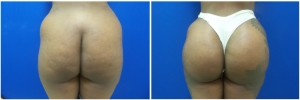 buttock-implants-before-after-18-1