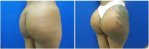 buttock-implants-before-after-18-4