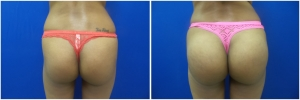 buttock-implants-before-after-20-3