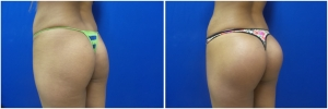 buttock-implants-before-after-21-2
