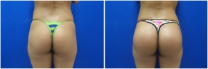 buttock-implants-before-after-21-3