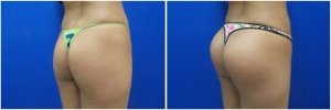 buttock-implants-before-after-21-4