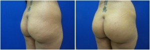 buttock-implants-before-after-23-1