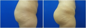 buttock-implants-before-after-23-2