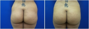 buttock-implants-before-after-23-3