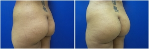 buttock-implants-before-after-23-4