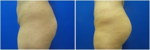buttock-implants-before-after-23-5