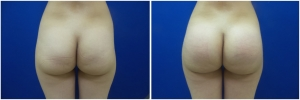 buttock-implants-before-after-24-1