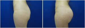 buttock-implants-before-after-24-4