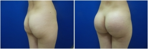 buttock-implants-before-after-24-5