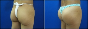 buttock-implants-before-after-25-1