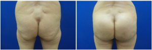 buttock-implants-before-after-29-1