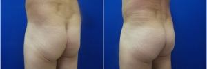 male-buttock-implants-1