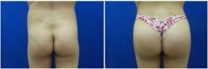 buttock-augmentation-fat-transfer-10-1