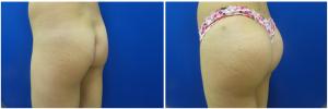 buttock-augmentation-fat-transfer-10-5