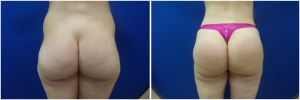 buttock-augmentation-fat-transfer-9-3