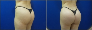 liposuction-fat-transfer-before-after-photo-14-3 copy