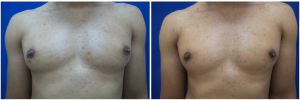 DH-gynecomastia-surgery-nyc-before-after-photo-1-1