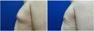 DS-gynecomastia-surgery-nyc-before-after-photo-1-2