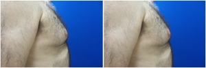 Gynecomastia-Before-After-NYC-1-1