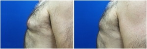 Gynecomastia-Before-After-NYC-1-3