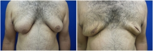 Gynecomastia-Before-After-NYC-2-1