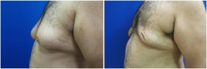 Gynecomastia-Before-After-NYC-2-3