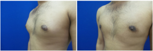 MR-gynecomastia-surgery-nyc-before-after-photo-1-4