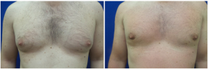 MV-gynecomastia-surgery-nyc-before-after-photo-1-1