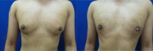 gynecomastia-before-after-photo-10-1