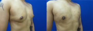 gynecomastia-before-after-photo-10-2