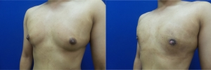 gynecomastia-before-after-photo-10-4