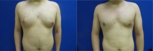 gynecomastia-before-after-photo-11-1