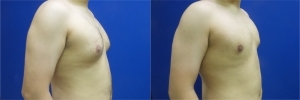 gynecomastia-before-after-photo-11-3